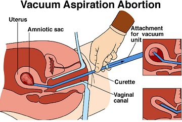 How much do first term abortion coast?